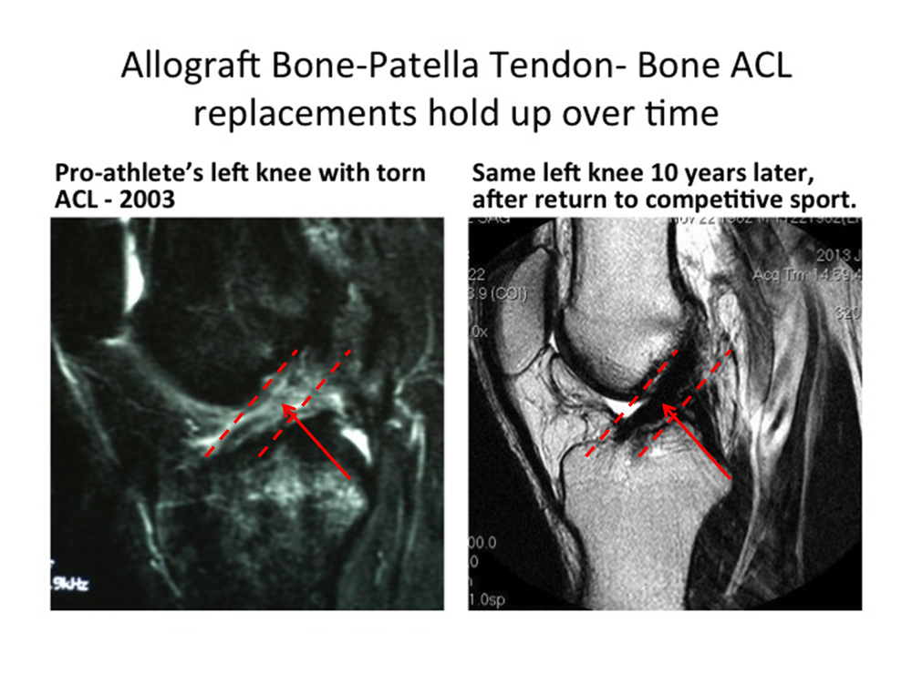Donor tissue best for ACL reconstruction
