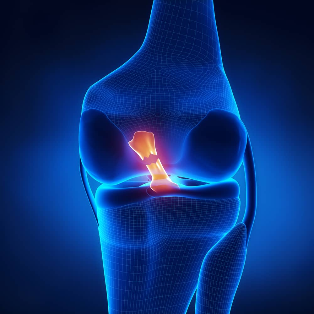ACL Anterior Cruciate Ligament Reconstruction and Repair