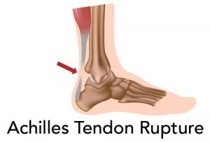 achilles tendon treatment without open surgery biologic