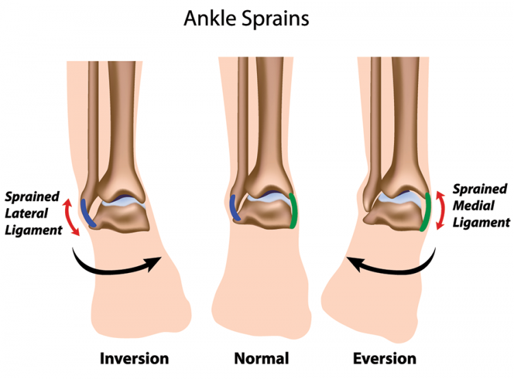 ankle sprain treatment twisted ankle the stone clinic