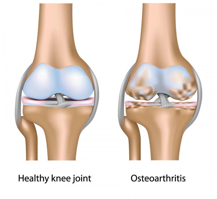 Avoid Arthritis Meniscus Transplant The Stone Clinic