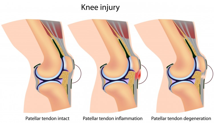 Patella Tendon Injury The Stonic Clinic