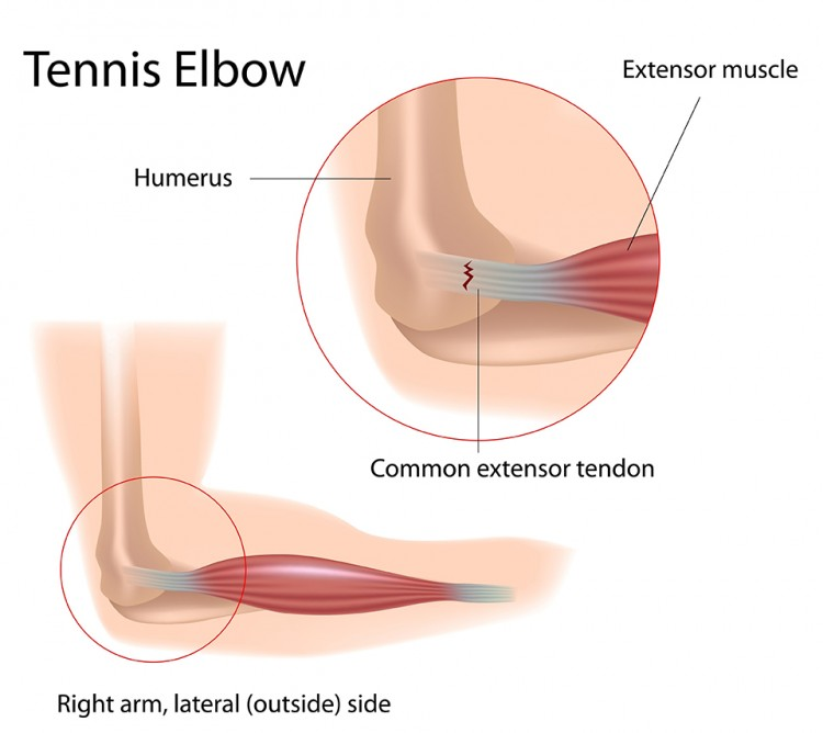 Elbow Injury And Repair Tennis Elbow The Stone Clinic
