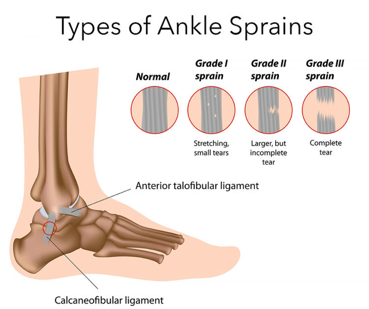 types of ankle