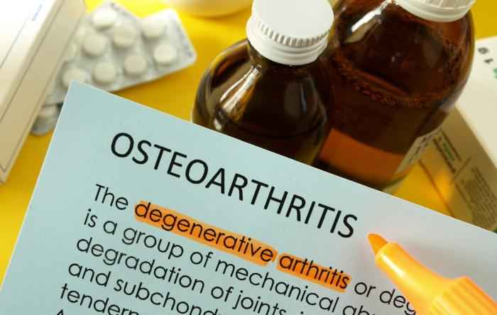 Best treatments for osteoarthritis
