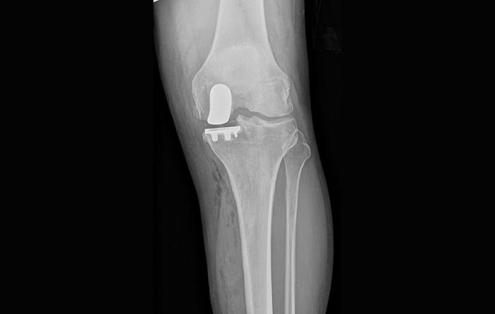 What is a Partial Knee Replacement