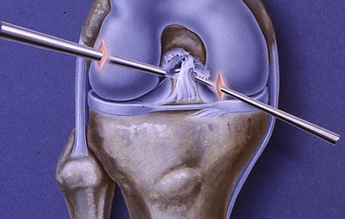 ACL Repair Surgery & Rehab