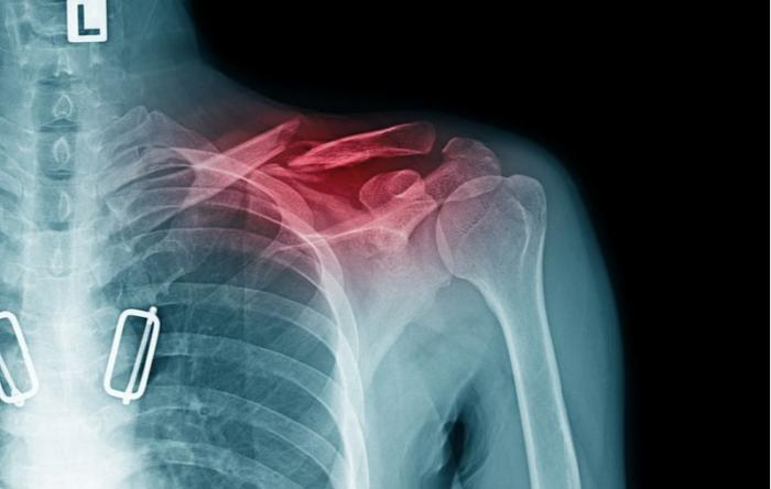 Repair of Clavicle Fractures