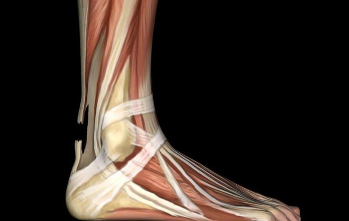 Achilles Rupture Anatomy Illustration
