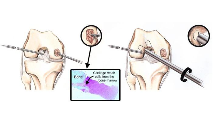 Why microfracture surgery with bone marrow repair cells