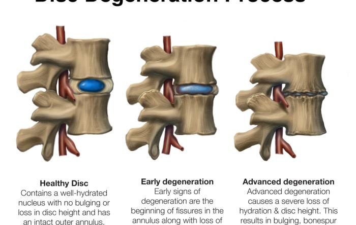 Spinal Disc Degeneration - Arthritis Formation