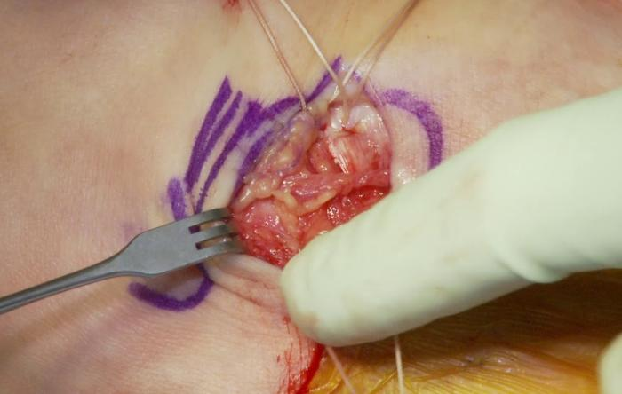Embedded thumbnail for Stone Ankle Ligament Repair Surgery Video