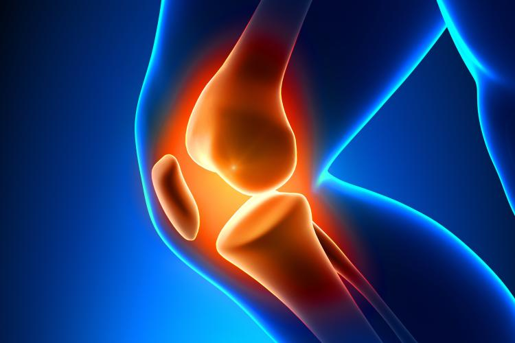 Arthritis may in fact be preventable if we are able to stop the production of the enzymes early after injury