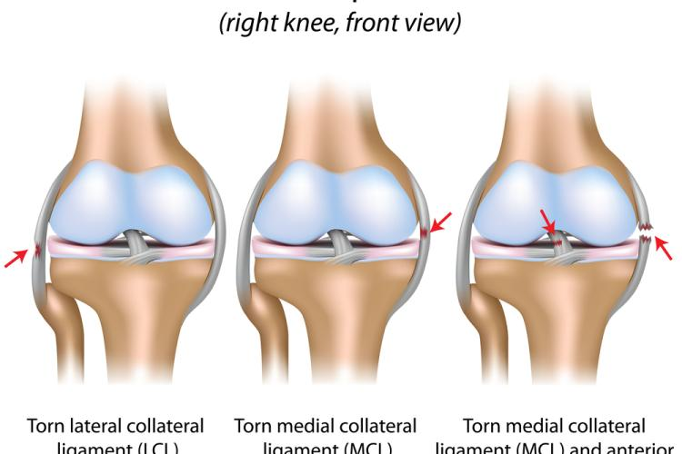 Knee ligament injuries, ACL-LCL-PCL-MCL-PCL-ALL