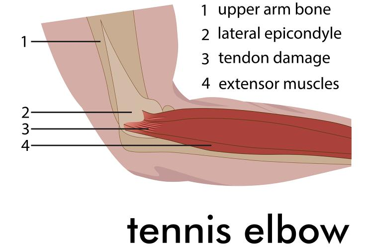 Epicondylitis, aka Tennis Elbow: Pain in the Wings