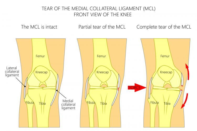 The MCL Injury The Stone Clinic